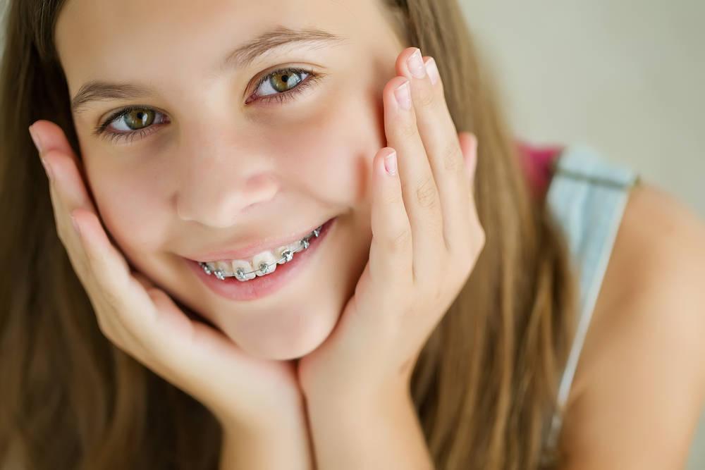 Cómo prevenir la ortodoncia infantil