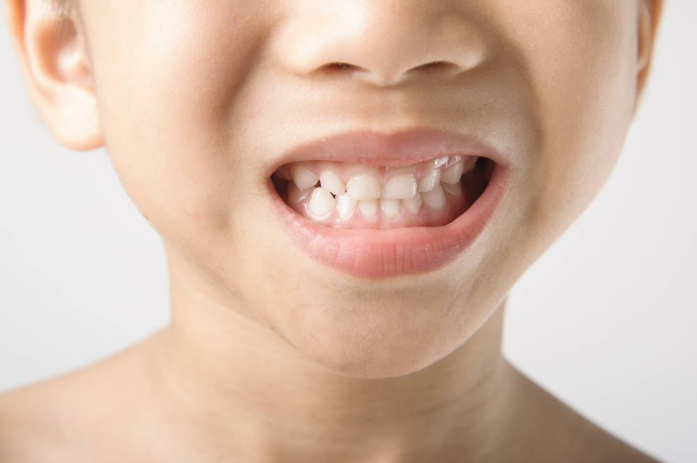 La salud bucodental, fundamental en la edad infantil
